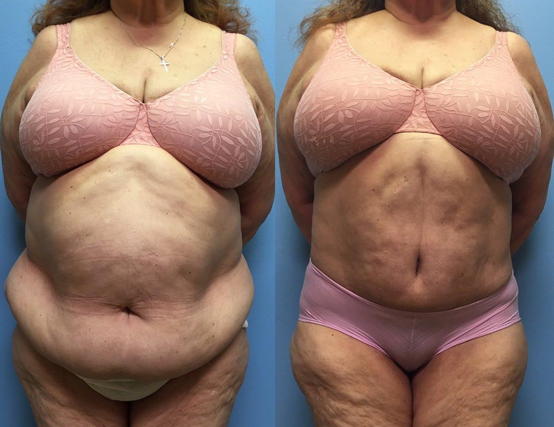 Fettsuging før og etter